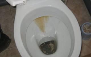 Чем очистить унитаз от мочевого камня в домашних условиях